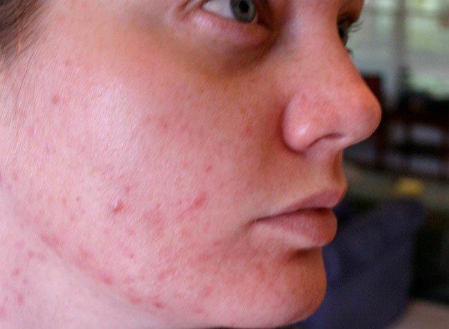 Cómo quitar las marcas de acné # Wasbak Zit Los_081955