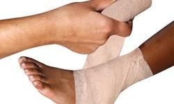 Aprender a tratar un esguince de tobillo