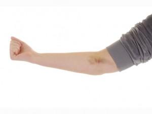 cómo curar hematomas