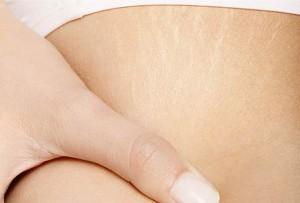 Cómo eliminar las estrías y otras marcas
