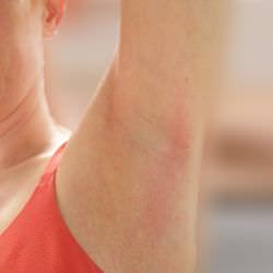 cómo curar los sarpullidos en las axilas