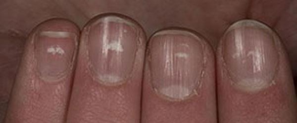 puntos blancos uñas