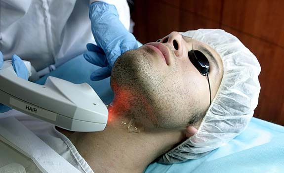 depilacion-laser-tambien-para-hombres