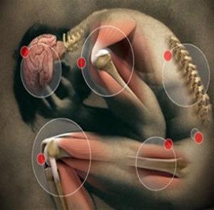 La artrosis