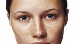 manchas de piel